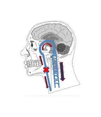 Fig. 10 - Stenosis in the internal jugular veins