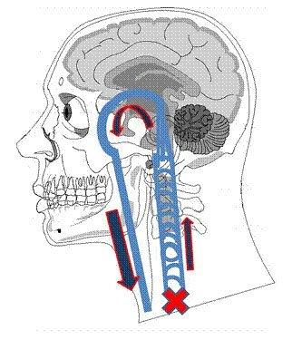 Fig. 11 - Stenosis in the azygous vein