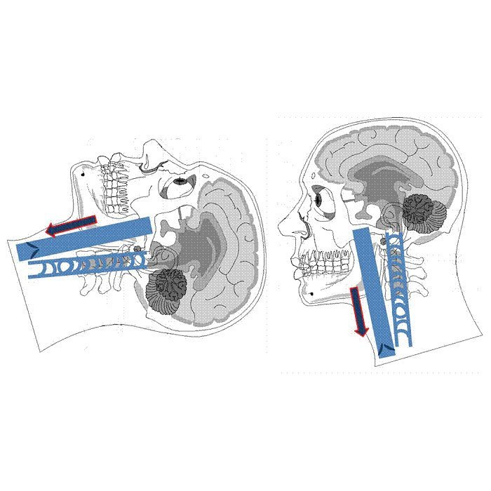 Team Brain Flow - Il team leader nel trattamento della CCSVI