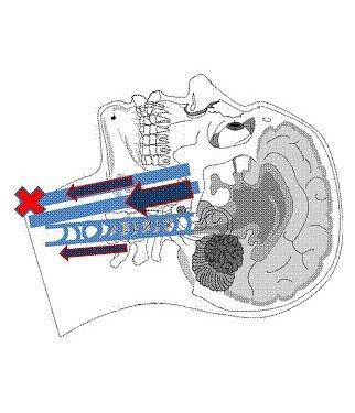 Fig. 3 - Segmento basso della vena Giugulare Interna