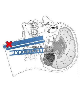 Fig. 4 - Segmento basso della vena Giugulare Interna