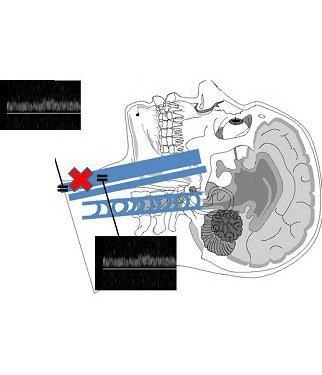 Fig. 5 - Segmento basso della vena Giugulare Interna