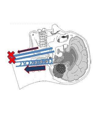 Fig. 6 - Lower portion of internal jugular vein