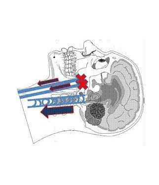 Fig. 8 - Upper portion of internal jugular vein