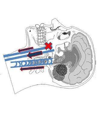 Fig. 9 - Segmento alto della vena Giugulare Interna